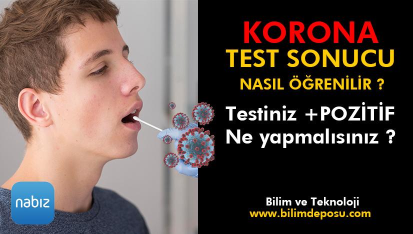 Covid-19 ( Korona Virüs ) test sonucu nasıl öğrenilir ?